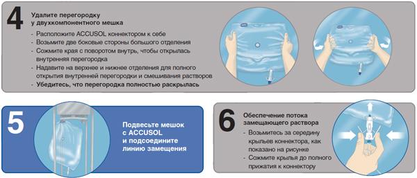 почечно-заместительная терапия